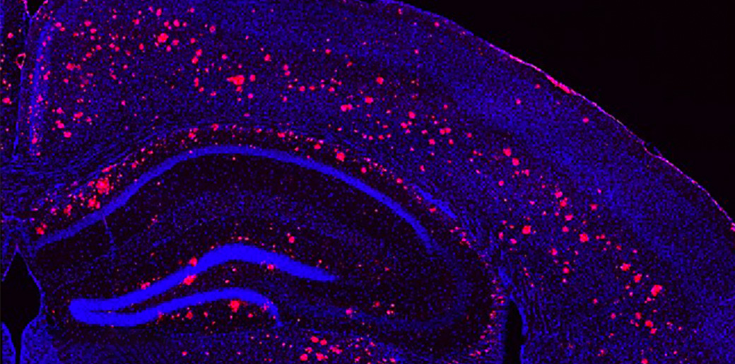 Microscope image of a light & sound treated mouse brain, cells labeled in blue, amyloid plaques in red.