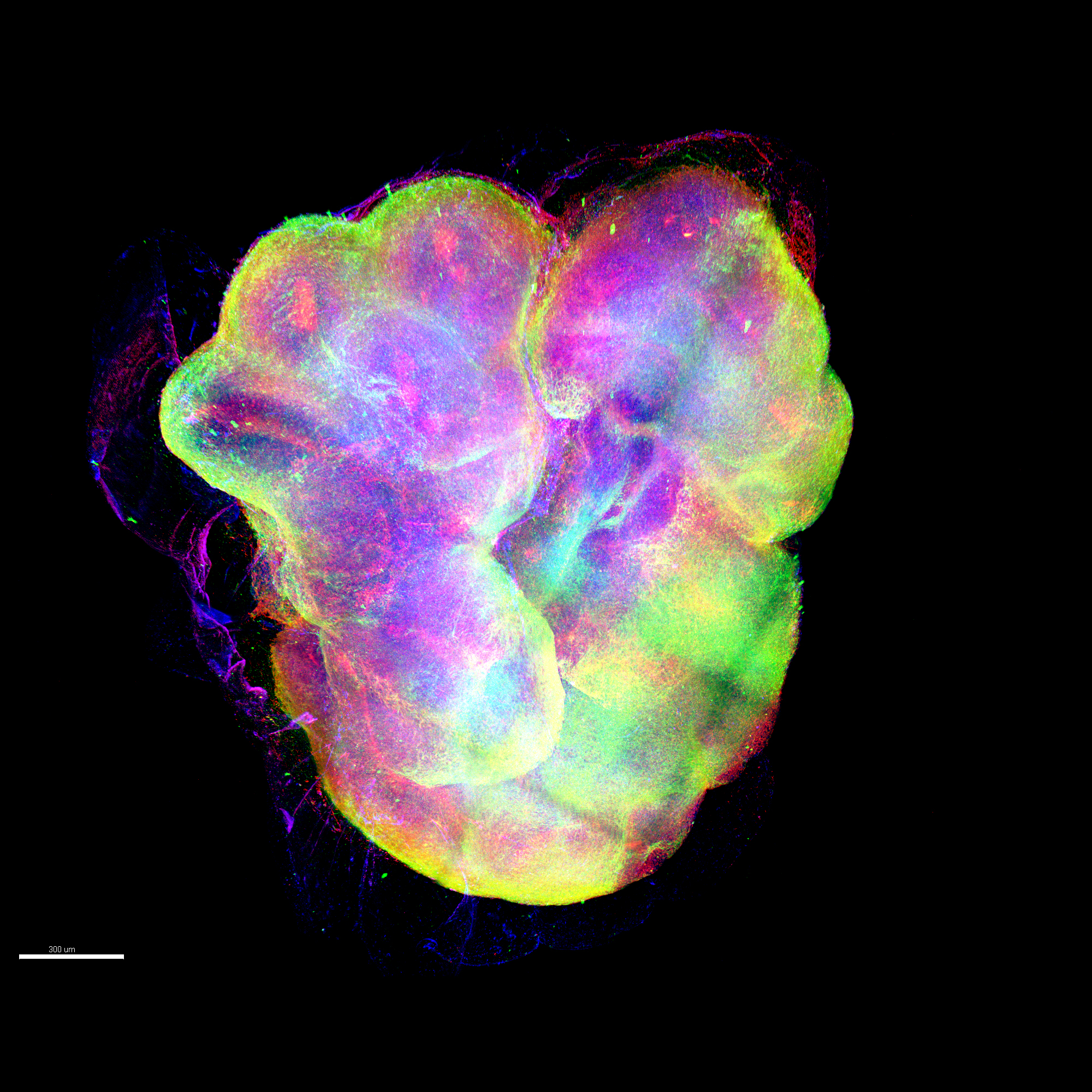 An organoid appears as a vaguely heart-shaped blob with many colors