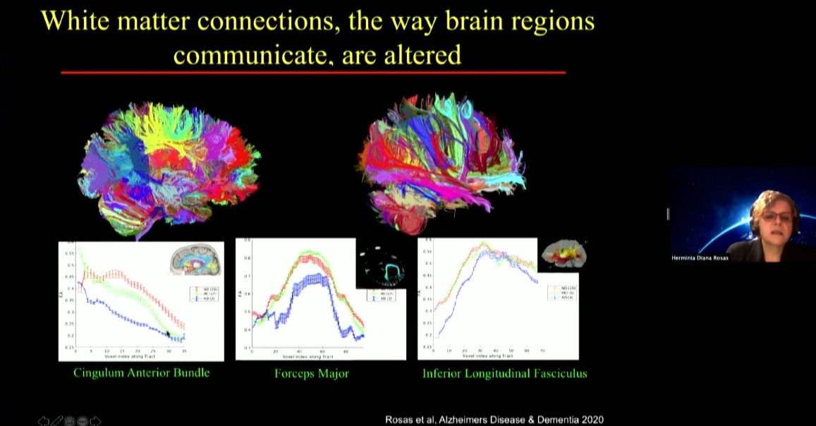 Diana Rosas shows a slide comparing two brain scans made up of color coded lines